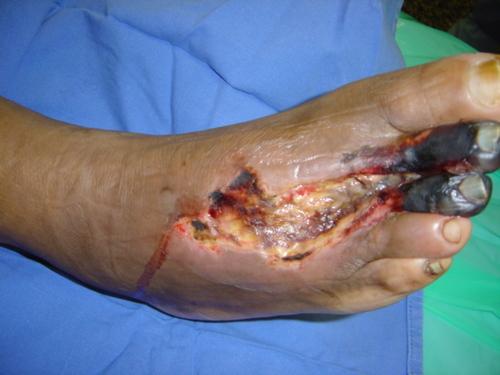 La trombosis exterior gemorroidalnogo del nudo la sangre